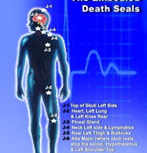 Jseals & Unnatrual Implant Removal